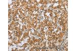 Immunohistochemistry (IHC) image for anti-Secreted Frizzled-Related Protein 5 (SFRP5) antibody (ABIN2425813)