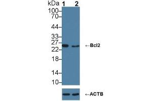 Image no. 3 for anti-B-Cell CLL/lymphoma 2 (BCL2) (AA 2-208) antibody (ABIN1077853)