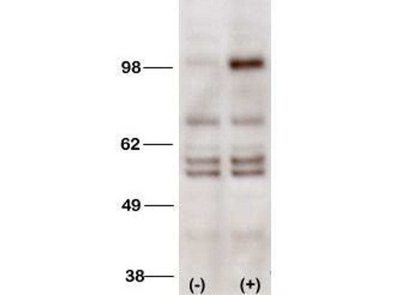 Western Blotting (WB) image for anti-PI3KC3 (AA 770-801), (C-Term) antibody (ABIN388591)