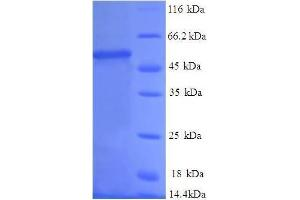 Image no. 1 for Proteasome (Prosome, Macropain) Subunit, beta Type, 1 (PSMB1) (AA 29-241), (full length) protein (GST tag) (ABIN1607967)