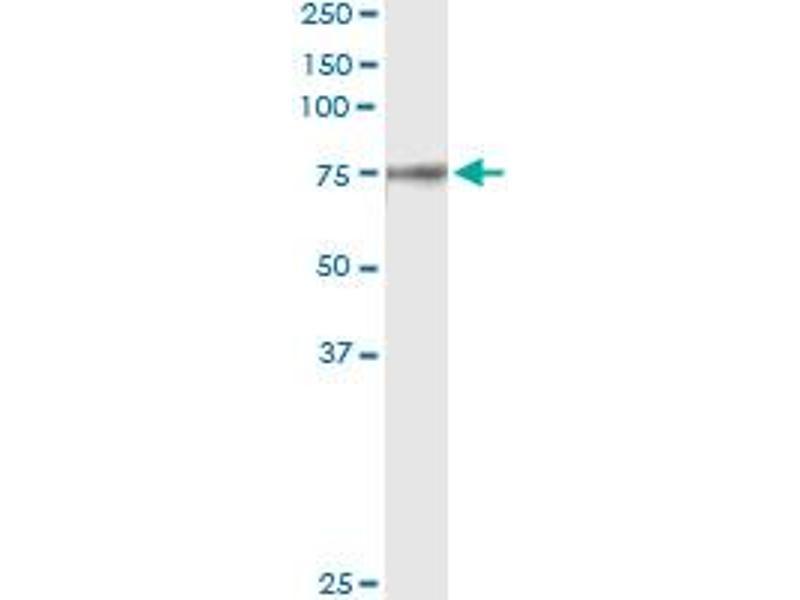 Immunoprecipitation (IP) image for anti-Coagulation Factor II (thrombin) (F2) (AA 263-362), (partial) antibody (ABIN560822)
