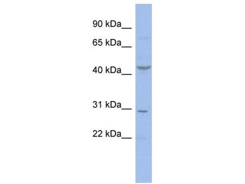 Western Blotting (WB) image for anti-Cyclin E2 antibody (CCNE2) (N-Term) (ABIN504597)