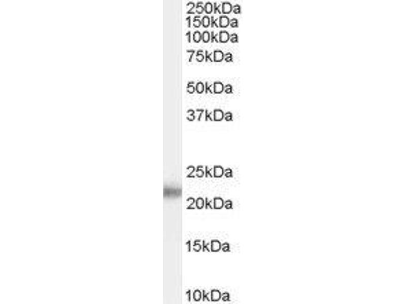Western Blotting (WB) image for anti-Kallikrein 2 (KLK2) (both Isoforms) antibody (ABIN4328019)
