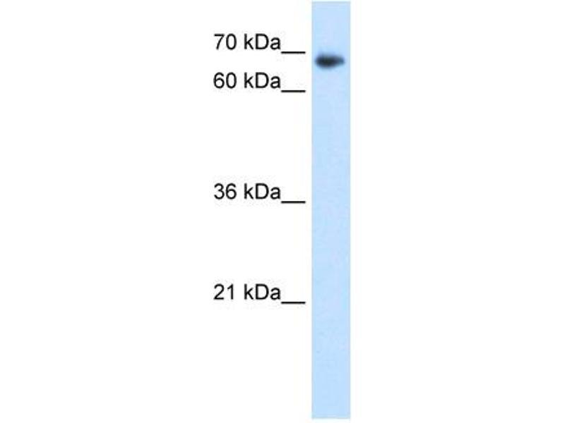 Western Blotting (WB) image for anti-TAF6 RNA Polymerase II, TATA Box Binding Protein (TBP)-Associated Factor, 80kDa (TAF6) (N-Term) antibody (ABIN309749)