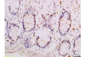 Immunohistochemistry (Paraffin-embedded Sections) (IHC (p)) image for anti-Adiponectin Receptor 1 (ADIPOR1) (AA 257-267) antibody (ABIN670836)