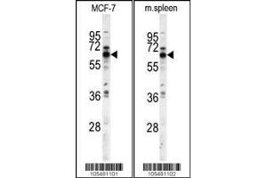 Western Blotting (WB) image for anti-PANK1 antibody (Pantothenate Kinase 1) (AA 75-105) (ABIN391235)