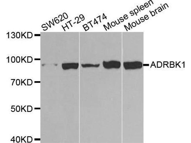 Western Blotting (WB) image for anti-Adrenergic, Beta, Receptor Kinase 1 (ADRBK1) antibody (ABIN3022346)