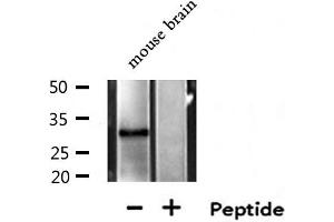 Image no. 1 for anti-Methylthioadenosine phosphorylase (MTAP) antibody (ABIN6263418)