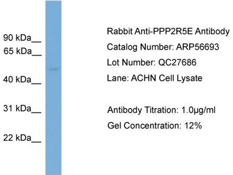 Western Blotting (WB) image for anti-Protein Phosphatase 2, Regulatory Subunit B', epsilon Isoform (PPP2R5E) (N-Term) antibody (ABIN2786846)