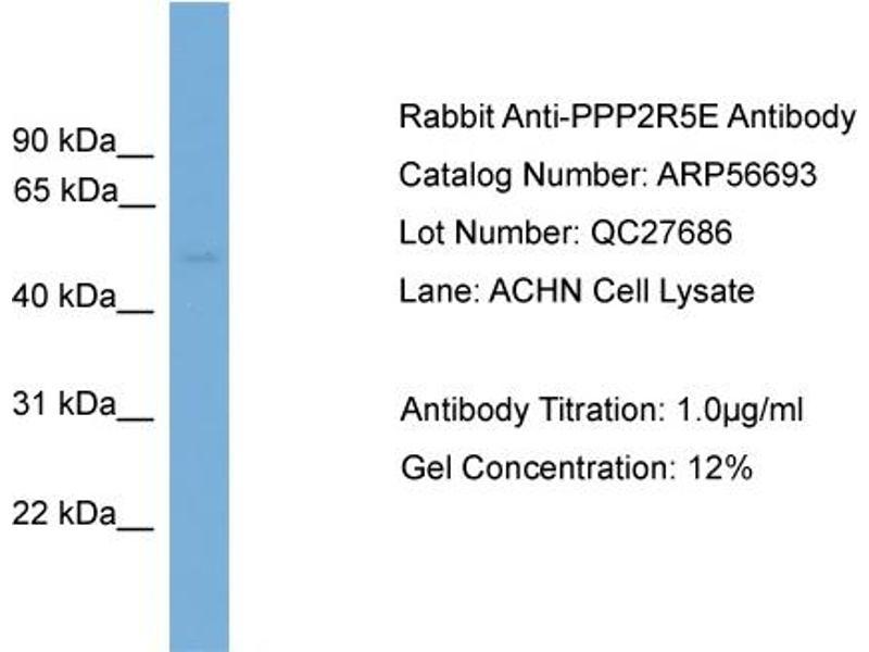 Western Blotting (WB) image for anti-PPP2R5E Antikörper (Protein Phosphatase 2, Regulatory Subunit B', epsilon Isoform) (N-Term) (ABIN2786846)
