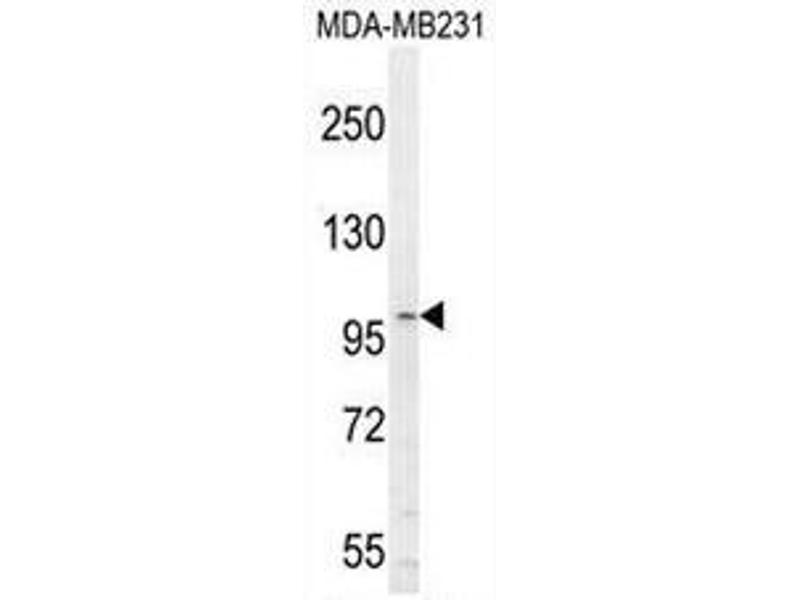 Western Blotting (WB) image for anti-Interleukin 6 Signal Transducer (Gp130, Oncostatin M Receptor) (IL6ST) (AA 878-906), (C-Term) antibody (ABIN951186)