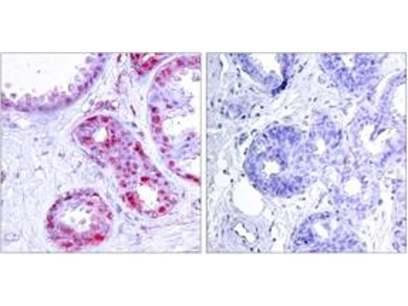 Immunohistochemistry (IHC) image for anti-C-JUN antibody (Jun Proto-Oncogene) (pSer243) (ABIN1531886)