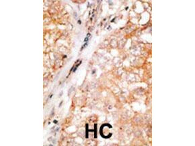 Immunohistochemistry (IHC) image for anti-BCL2-Like 2 (BCL2L2) (AA 24-59), (BH3 Domain) antibody (ABIN388097)