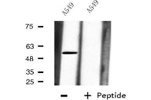 Image no. 2 for anti-Carboxypeptidase M (CPM) antibody (ABIN6257591)