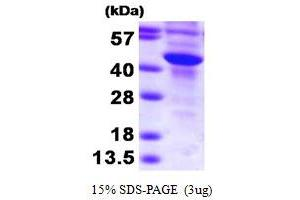 Image no. 1 for Sulfotransferase Family, Cytosolic, 2B, Member 1 (SULT2B1) (AA 1-365) protein (His tag) (ABIN666965)