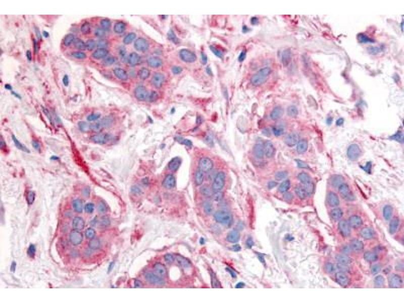 Immunohistochemistry (Paraffin-embedded Sections) (IHC (p)) image for anti-V-Erb-B2 erythroblastic Leukemia Viral Oncogene Homolog 2, Neuro/glioblastoma Derived Oncogene Homolog (Avian) (ERBB2) (Cytoplasmic Domain) antibody (ABIN213613)