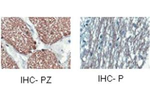Image no. 5 for anti-2',3'-Cyclic Nucleotide 3' phosphodiesterase (CNP) (Middle Region) antibody (ABIN2778174)