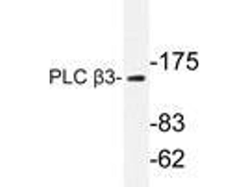 Western Blotting (WB) image for anti-phospholipase C, beta 3 (Phosphatidylinositol-Specific) (PLCB3) antibody (ABIN498179)