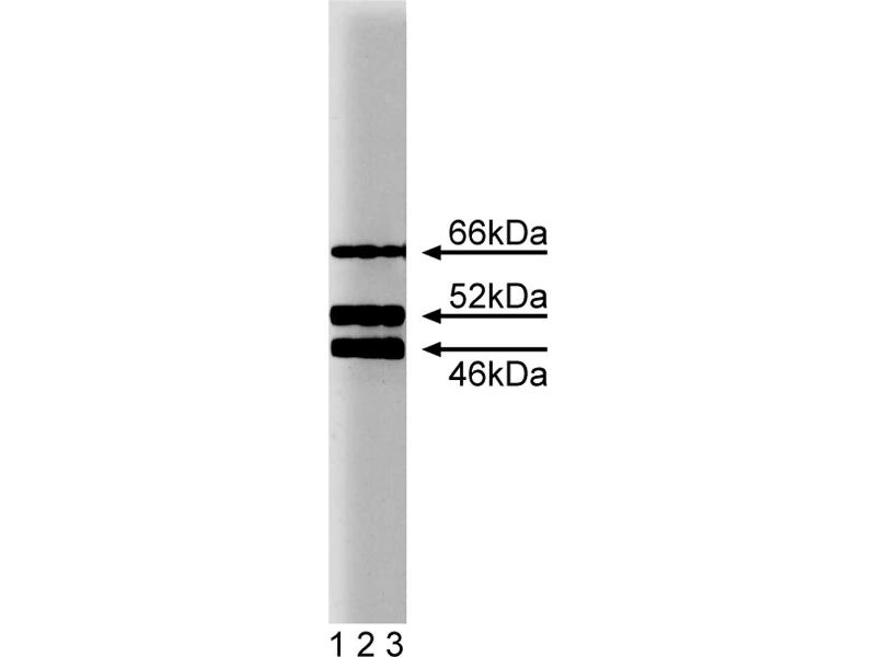 Western Blotting (WB) image for anti-SHC (Src Homology 2 Domain Containing) Transforming Protein 1 (SHC1) (AA 359-473) antibody (ABIN968229)