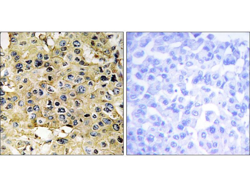 Image no. 1 for anti-Transmembrane Protease, serine 15 (TMPRSS15) antibody (ABIN1576281)