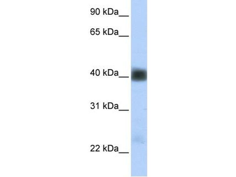 Western Blotting (WB) image for anti-Sarcoglycan, beta (43kDa Dystrophin-Associated Glycoprotein) (SGCB) (Middle Region) antibody (ABIN2781779)