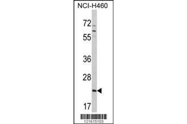 Western blot analysis of CDC42 Antibody (Center) (ABIN390921) in NCI-H460 cell line lysates (35 µg/lane). CDC42 (arrow) was detected using the purified polyclonal antibody.