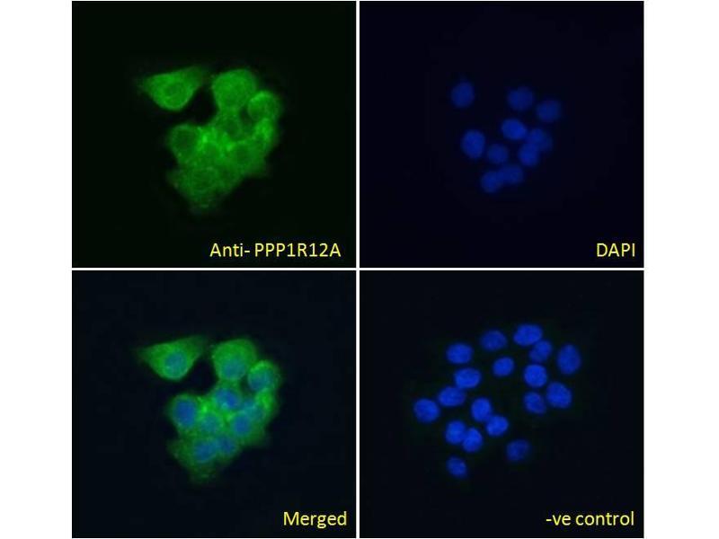 Image no. 3 for anti-Myosin Phosphatase, Target Subunit 1 (PPP1R12A) (C-Term) antibody (ABIN6391349)