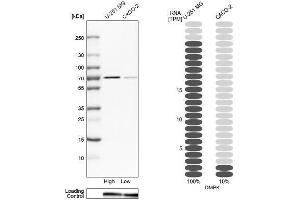 Western Blotting (WB) image for anti-Dystrophia Myotonica-Protein Kinase (DMPK) antibody (ABIN4305449)
