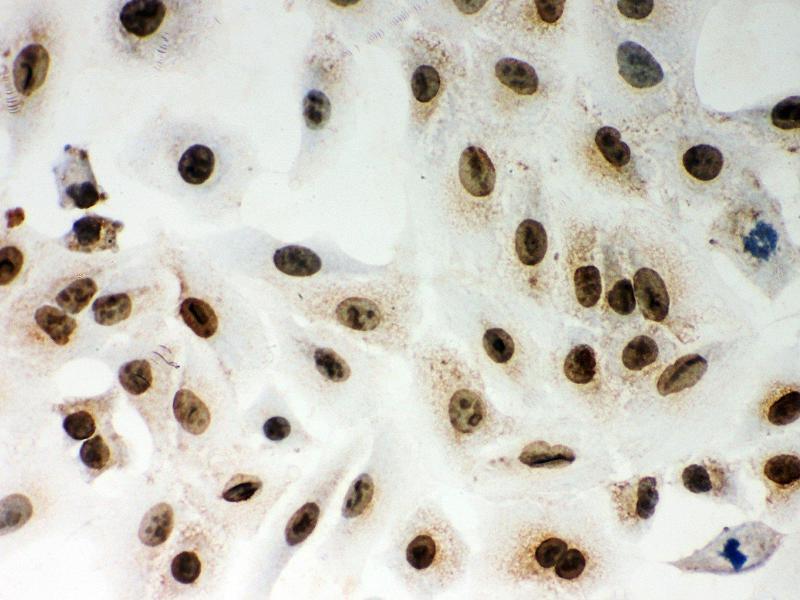 Immunohistochemistry (IHC) image for anti-Lamin A/C (LMNA) (AA 481-646) antibody (ABIN3043295)