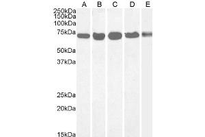 Image no. 2 for anti-DEAD (Asp-Glu-Ala-Asp) Box Polypeptide 5 (DDX5) (C-Term) antibody (ABIN185199)