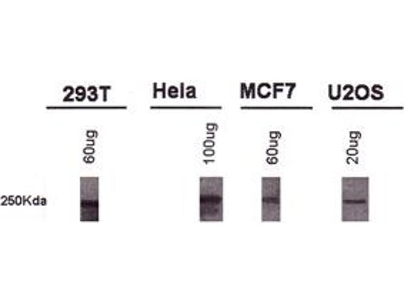 Western Blotting (WB) image for anti-BRCA1 antibody (Breast Cancer 1) (AA 1314-1864) (ABIN152031)
