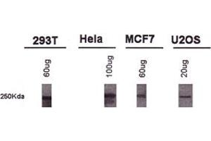 Western Blotting (WB) image for anti-BRCA1 antibody (Breast Cancer 1) (AA 1314-1864) (ABIN253015)