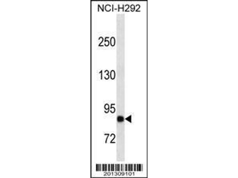 Western Blotting (WB) image for anti-B-Cell CLL/lymphoma 6 (BCL6) (AA 676-704), (C-Term) antibody (ABIN659194)