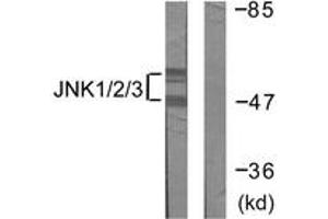 Western Blotting (WB) image for anti-JNK antibody (Mitogen-Activated Protein Kinase 8) (ABIN1532353)