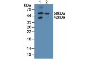 Image no. 2 for anti-Galactosamine (N-Acetyl)-6-Sulfate Sulfatase (GALNS) (AA 172-381) antibody (ABIN2117395)