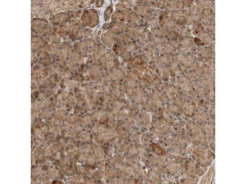 Immunohistochemistry (Paraffin-embedded Sections) (IHC (p)) image for anti-ADP-Ribosylhydrolase Like 2 (ADPRHL2) antibody (ABIN4278516)