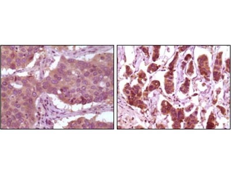 Immunohistochemistry (IHC) image for anti-Mitogen-Activated Protein Kinase 1 (MAPK1) antibody (ABIN1107133)