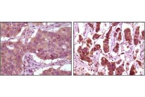 Immunohistochemistry (IHC) image for anti-Mitogen-Activated Protein Kinase 1 (MAPK1) antibody (ABIN1107133)