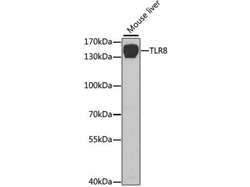 Western Blotting (WB) image for anti-Toll-Like Receptor 8 (TLR8) antibody (ABIN1875114)