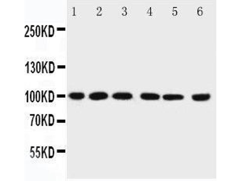 Western Blotting (WB) image for anti-PIAS1 antibody (Protein Inhibitor of Activated STAT, 1) (AA 636-651) (ABIN3044474)