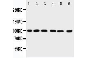 Western Blotting (WB) image for anti-Protein Inhibitor of Activated STAT, 1 (PIAS1) (AA 636-651), (C-Term) antibody (ABIN3044474)