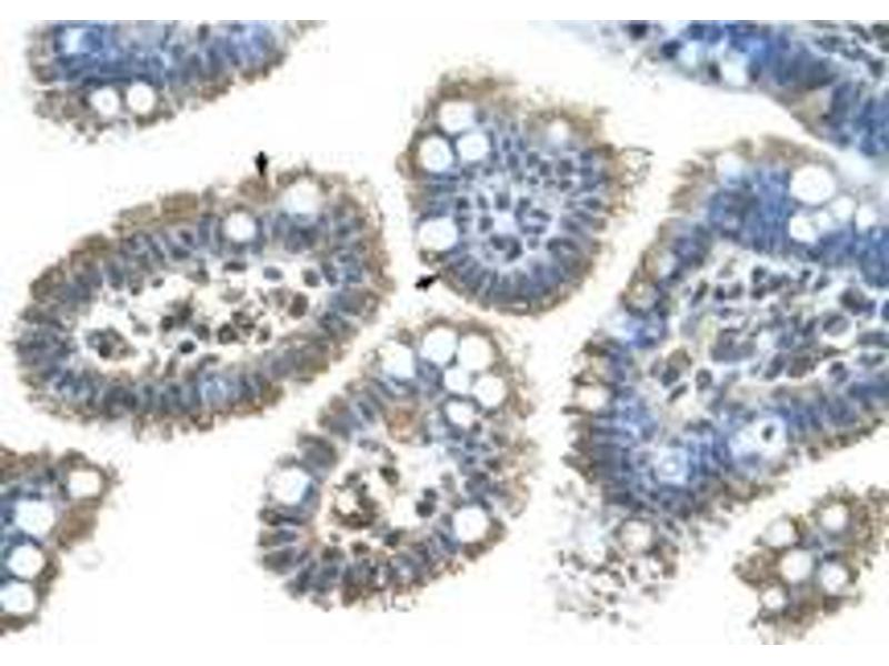 image for anti-Sonic Hedgehog (SHH) (N-Term) antibody (ABIN225218)