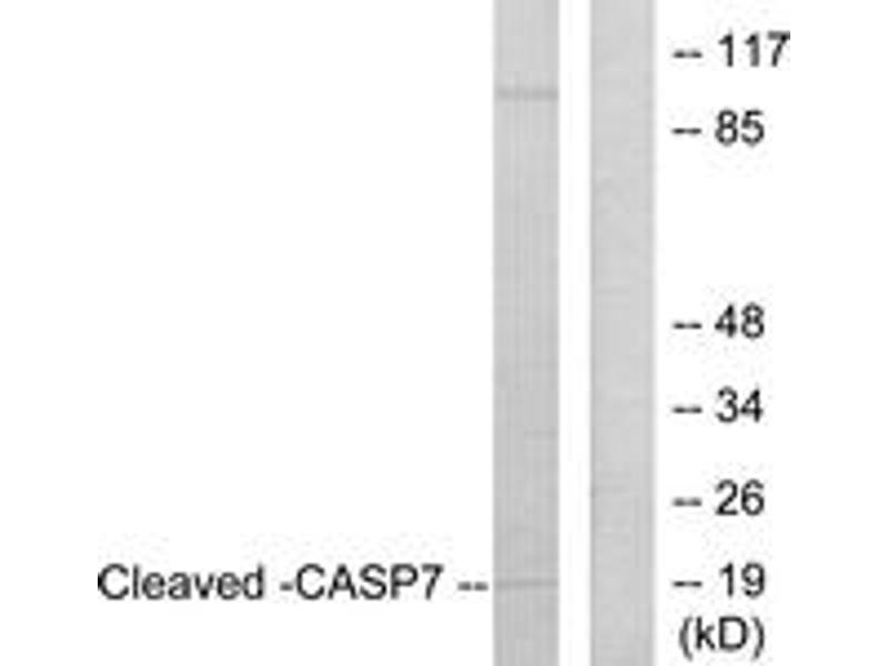 Western Blotting (WB) image for anti-Caspase 7 antibody (Caspase 7, Apoptosis-Related Cysteine Peptidase) (Cleaved-Asp198) (ABIN1536084)