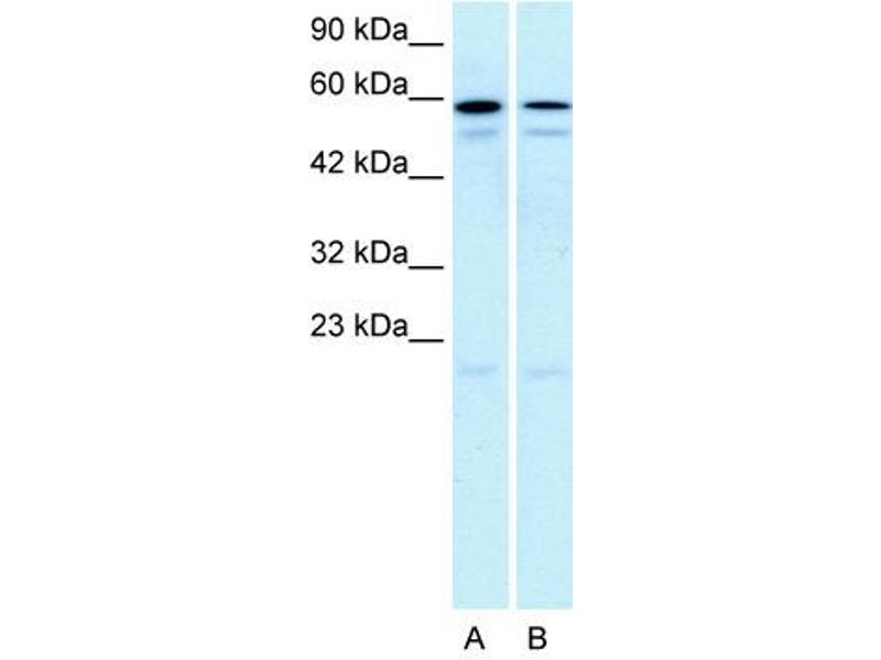 Western Blotting (WB) image for anti-5-Hydroxytryptamine (serotonin) Receptor 2C (HTR2C) (N-Term) antibody (ABIN2792274)