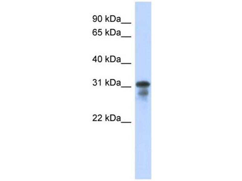 Western Blotting (WB) image for anti-Mediator Complex Subunit 6 (MED6) (Middle Region) antibody (ABIN2778335)