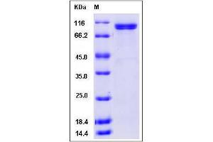 image for Thyroid Peroxidase (TPO) (AA 1-846), (Pro725Thr-Mutant), (Ser257Ala-Mutant) protein (His tag) (ABIN3216401)