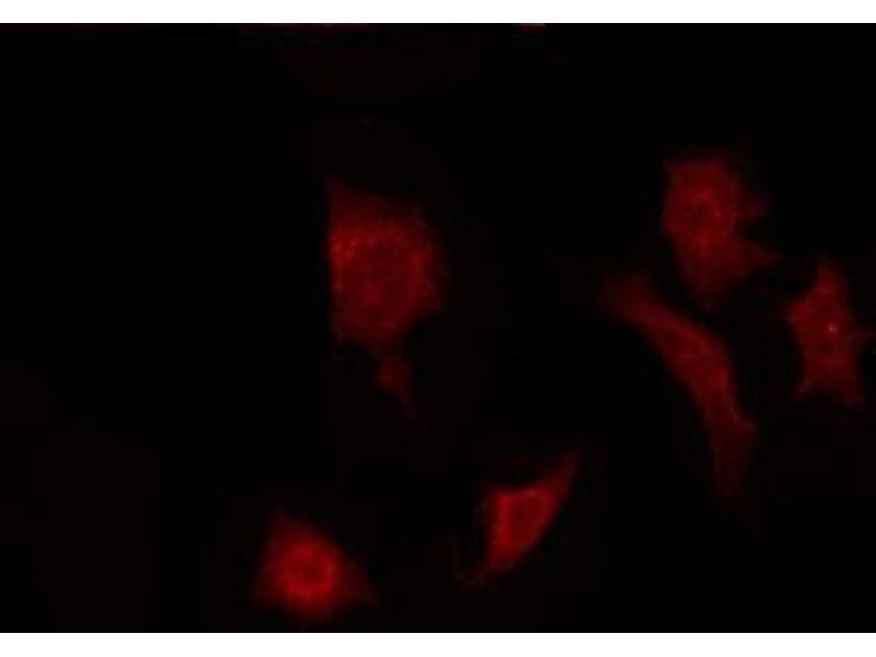Immunofluorescence (fixed cells) (IF/ICC) image for anti-Fibroblast Growth Factor 22 (FGF22) antibody (ABIN6261719)