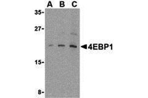 Western Blotting (WB) image for anti-EIF4EBP1 antibody (Eukaryotic Translation Initiation Factor 4E Binding Protein 1) (C-Term) (ABIN2155060)