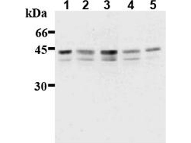 Western Blotting (WB) image for anti-IKBKG antibody (Inhibitor of kappa Light Polypeptide Gene Enhancer in B-Cells, Kinase gamma) (AA 262-319) (ABIN567775)