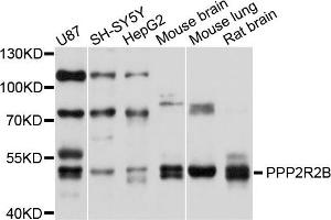 Western Blotting (WB) image for anti-PPP2R2B antibody (Protein Phosphatase 2, Regulatory Subunit B, beta) (ABIN4904840)